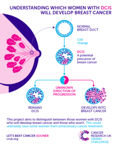 Understanding which women with DCIS will develop breast cancer
